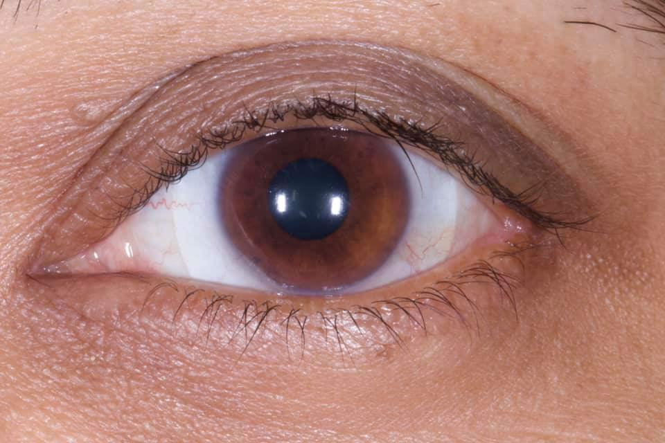 scleral contact lens fit on a patient in sydney