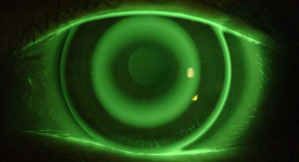 ortho-k lens fitting sydney