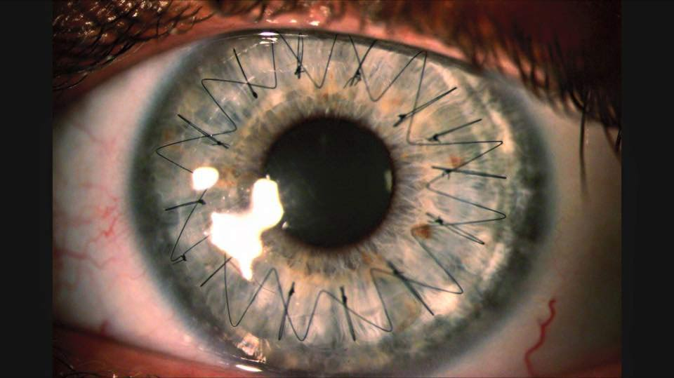 Eye with corneal graft, post graft contact lens fitting Sydney