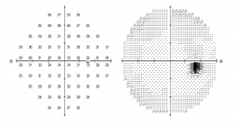 visual field test used in plaquenil screening sydney